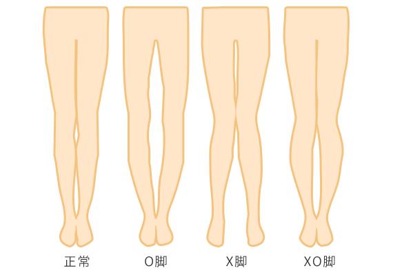 O脚・X脚・XO脚の矯正